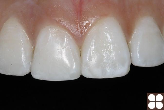 cosmetic dentistry Fairfax, VA
