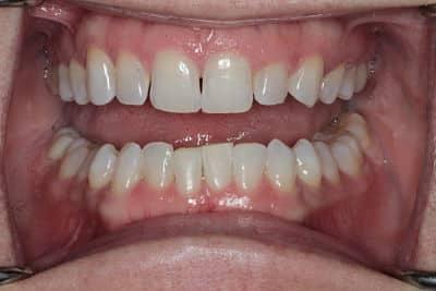 Teeth Whitening Fairfax, VA
