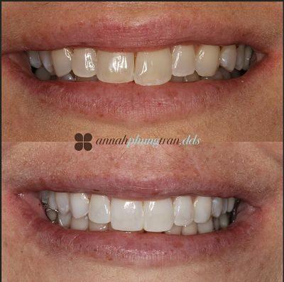 Teeth Whitening in Fairfax, VA